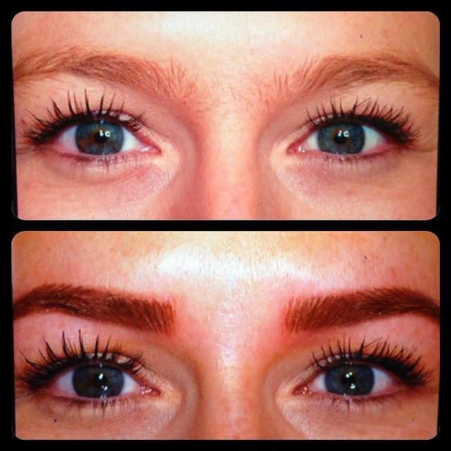 laser eyebrow removal before and after tattoos
