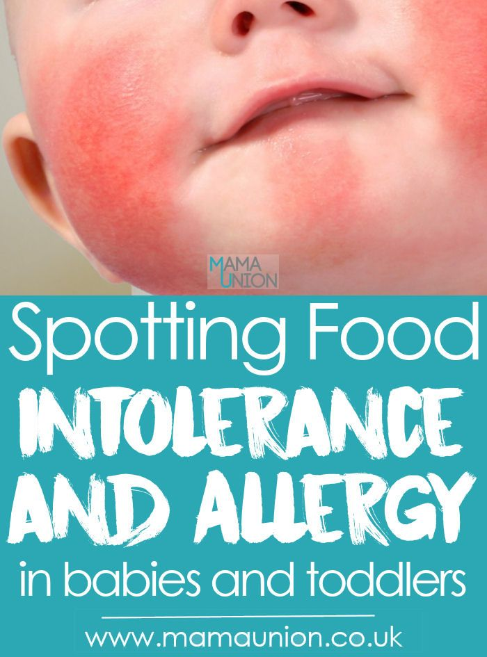 This Advice Is Great Especially If Allergies Run In The Family Spotting Food Allergy And Intolerance I Food Allergies Kids Dairy Allergy Baby Food Intolerance