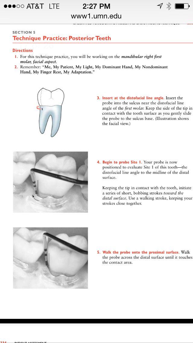 Probing   Dental   Pinterest