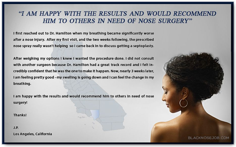 African American Rhinoplasty Reviews Nose surgery