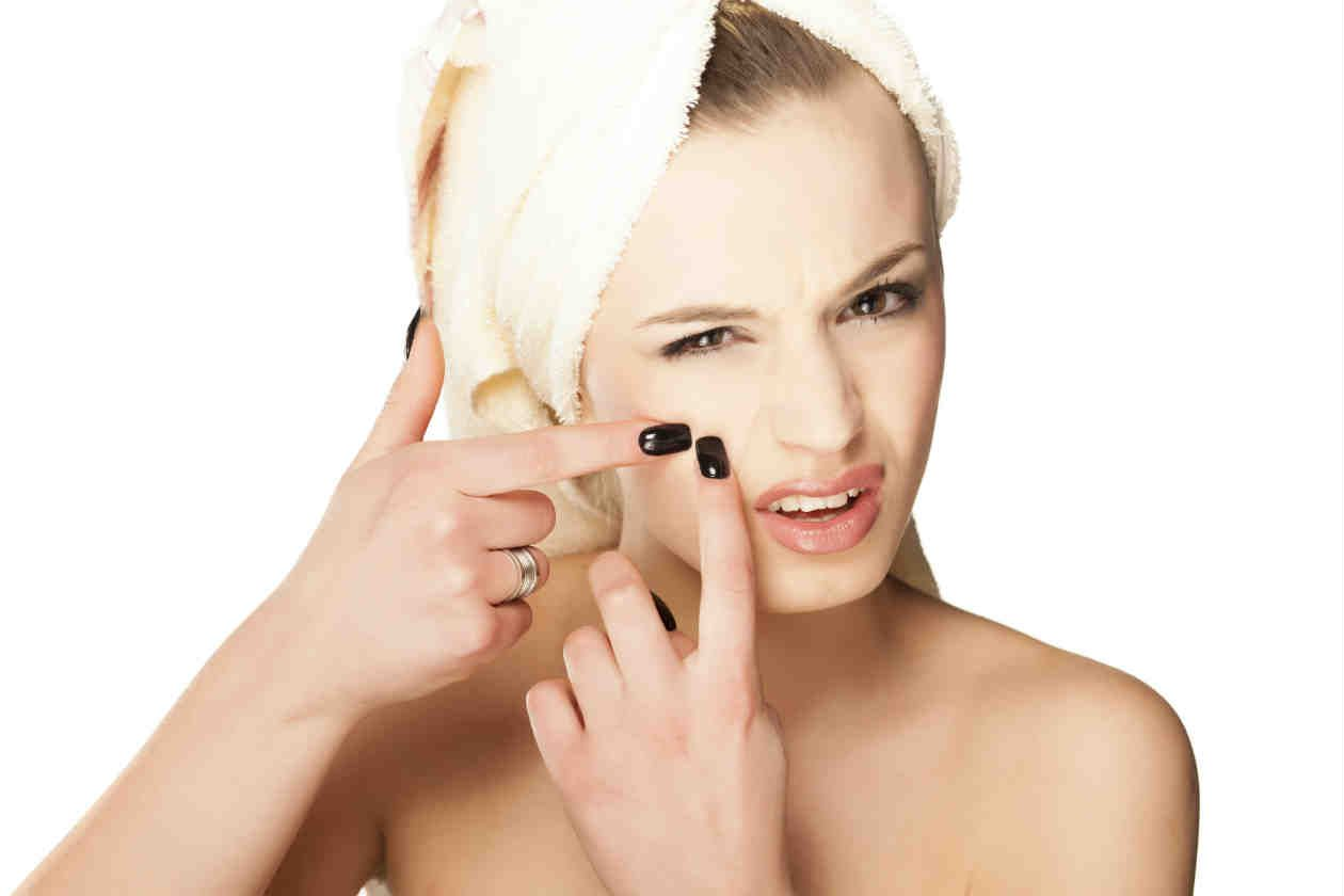 Image result for oily acne skin