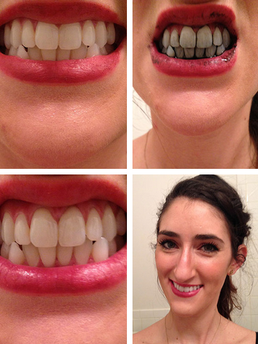 Can Charcoal Whiten Your Teeth?--I have these capsules and extremely coffee- and wine-yellowed, sensitive teeth. Will try.