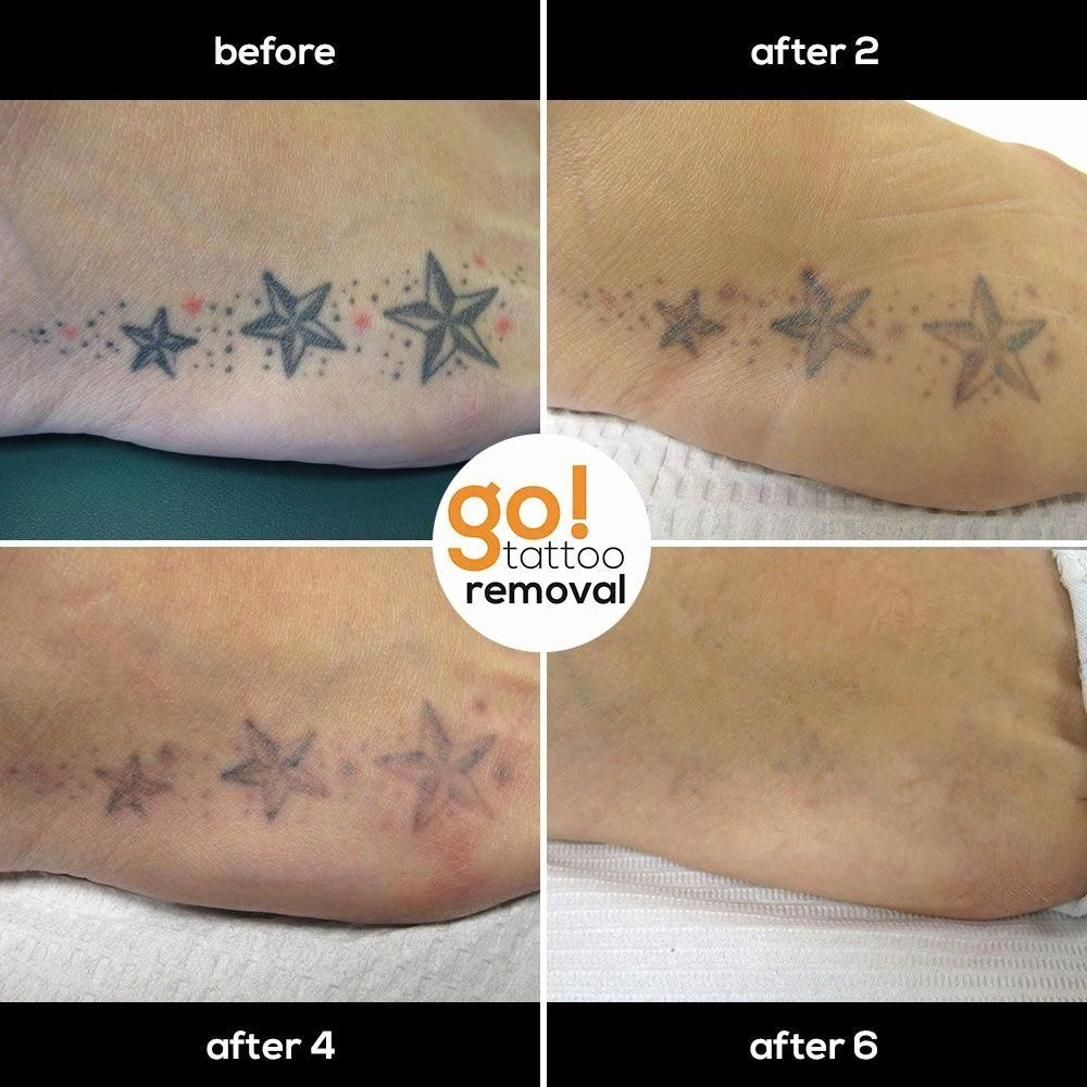 Salabrasion Tattoo Removal before and after (With images