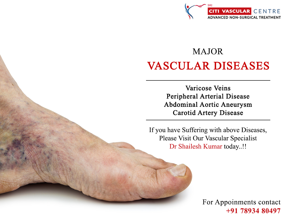 Major Vascular Diseases Varicoseveins