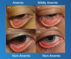 How To Cure Iron Deficiency Anemia Naturally