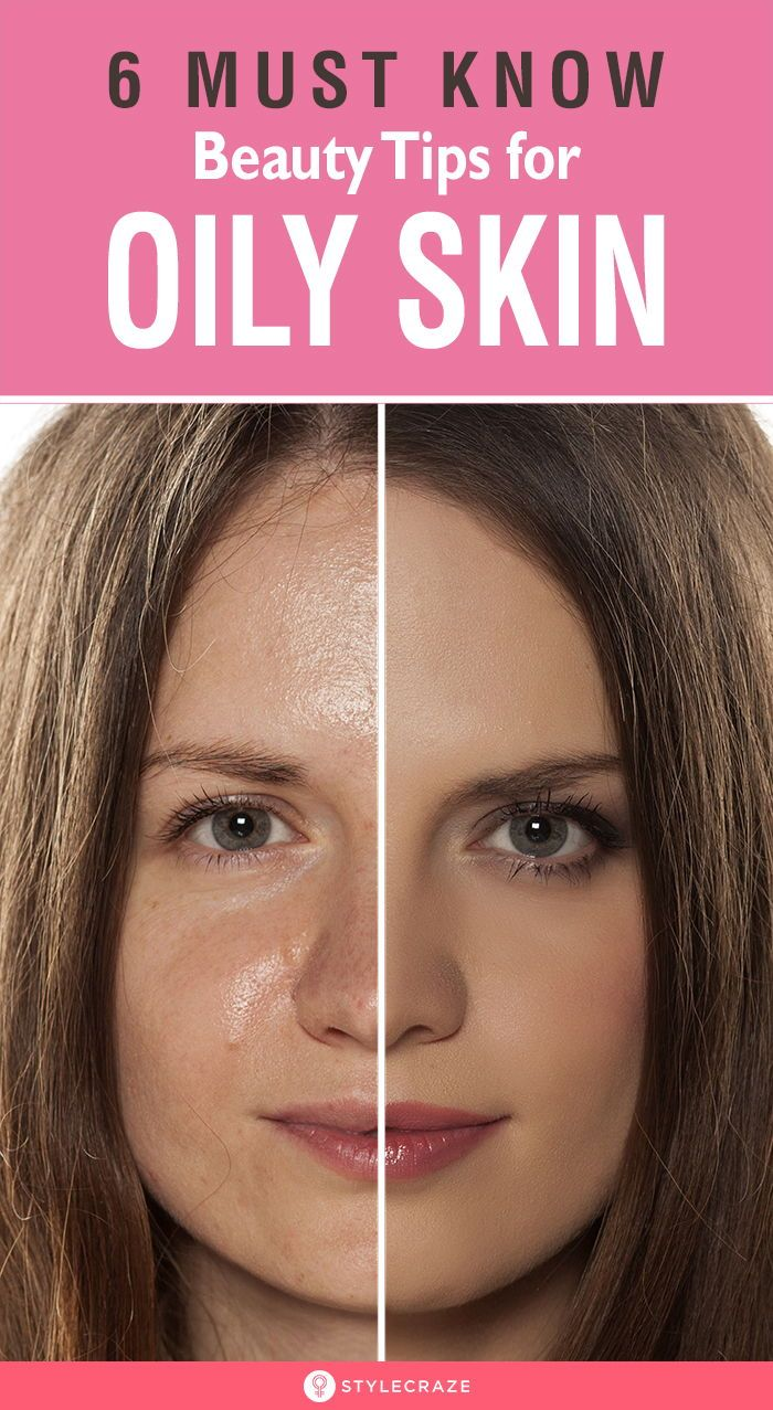 6 Must Know Beauty Tips for Oily Skin: Pollution and dirt can even lead to comedones (skin-bumps) for those with very oily skin. The solution for this is to keep the oil production in control by following some simple beauty and skin care tips for oily skin. These are the 6 tips for facial for oily skin. #Beauty #BeautyTips #OilySkin #SkinCare