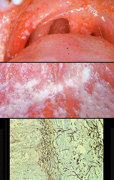 Oral candidiasis Candida surface overgrowth builds up as whitish plaque Budding yeasts and hyphal fungi invade tissue