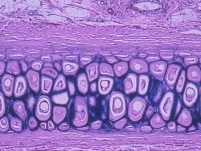 Elastic Cartilage Histology Slides Human Anatomy And Physiology Anatomy And Physiology