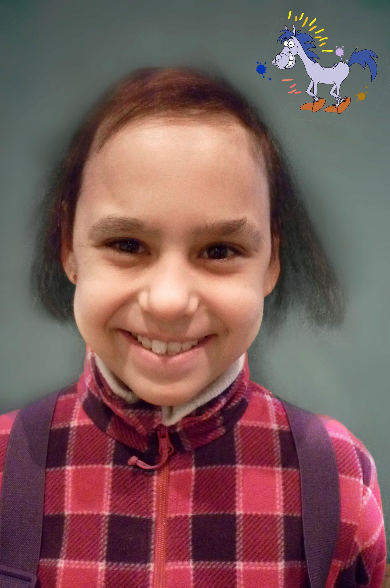 alopecia universalis full body