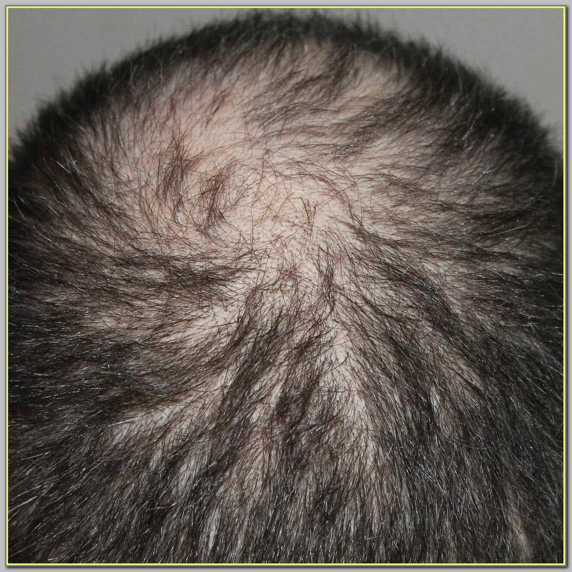 Pin on Hair Loss Prevention