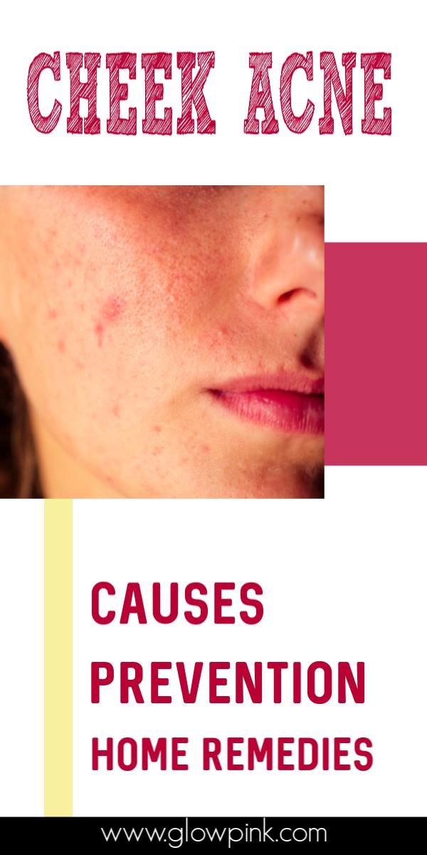 Pin On Self Care Skincare
