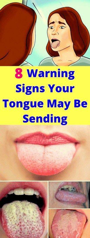 Warning Signs Your Tongue May Be Sending!!!!  #lifehacks  #fitness
