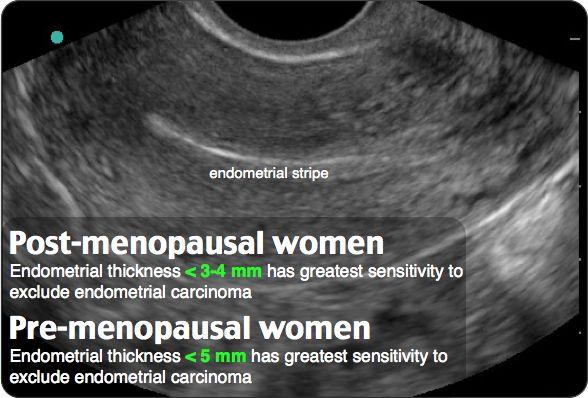 Endometrial stripe Nude Photos 74