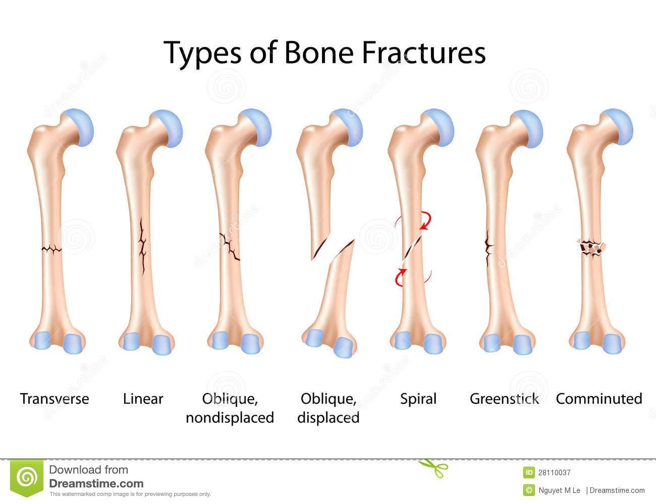 Comminuted Fracture Definition Google Search School Me Pinterest