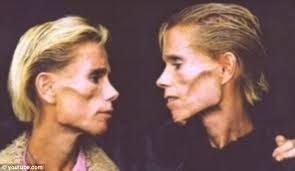 anorexia/faces - Google Search