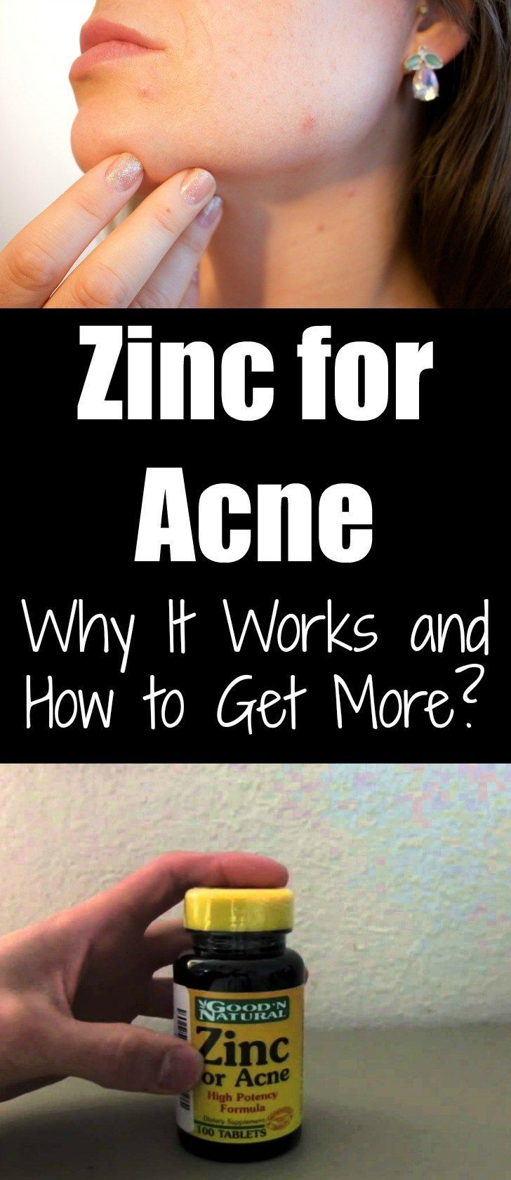 Zinc For Acne Why It Works & How To Get More!!!!? beauty