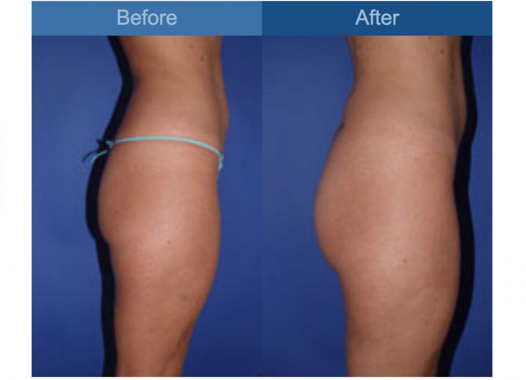 Plastic Surgery Before And After Photos Atlanta Ga Best Plastic Surgeons Plastic Surgery Plastic Surgeon