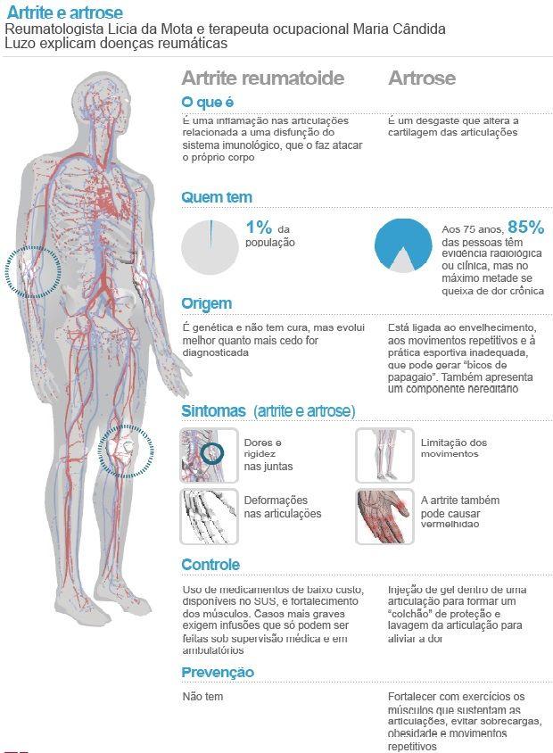 Reumatismo Vai Alem Das Dores Nas Articulacoes Medicine