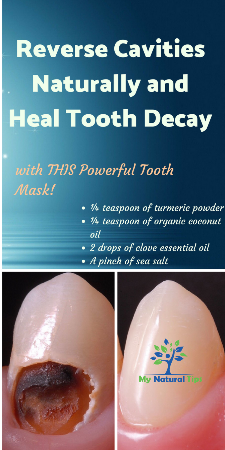 How To Heal Tooth Decay And Reverse Cavities Naturally Tooth Decay Remedies Reverse Cavities Heal Cavities