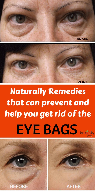 6cbf141ac23b Aloe Vera and Essential Oil to Remove the Stubborn Eye Bags!