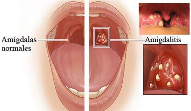 Cómo Deshacerse De La Amigdalitis Y El Dolor De Garganta En Sólo 4 Horas Natural Medicine Healing Food Sore Throat