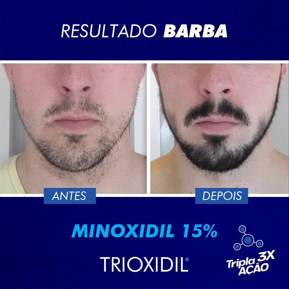 trinoxidil vs minoxidil
