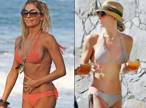 9cc9986923 LeAnn Rimes Breast Implants Plastic Surgery Before And After ...