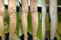 spataderen voeten verwijderen