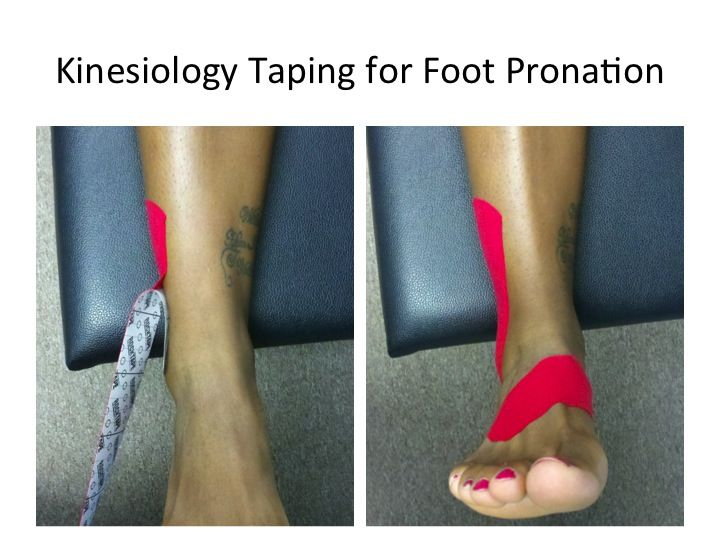 Biomechanics of the foot and ankle kinesiology taping