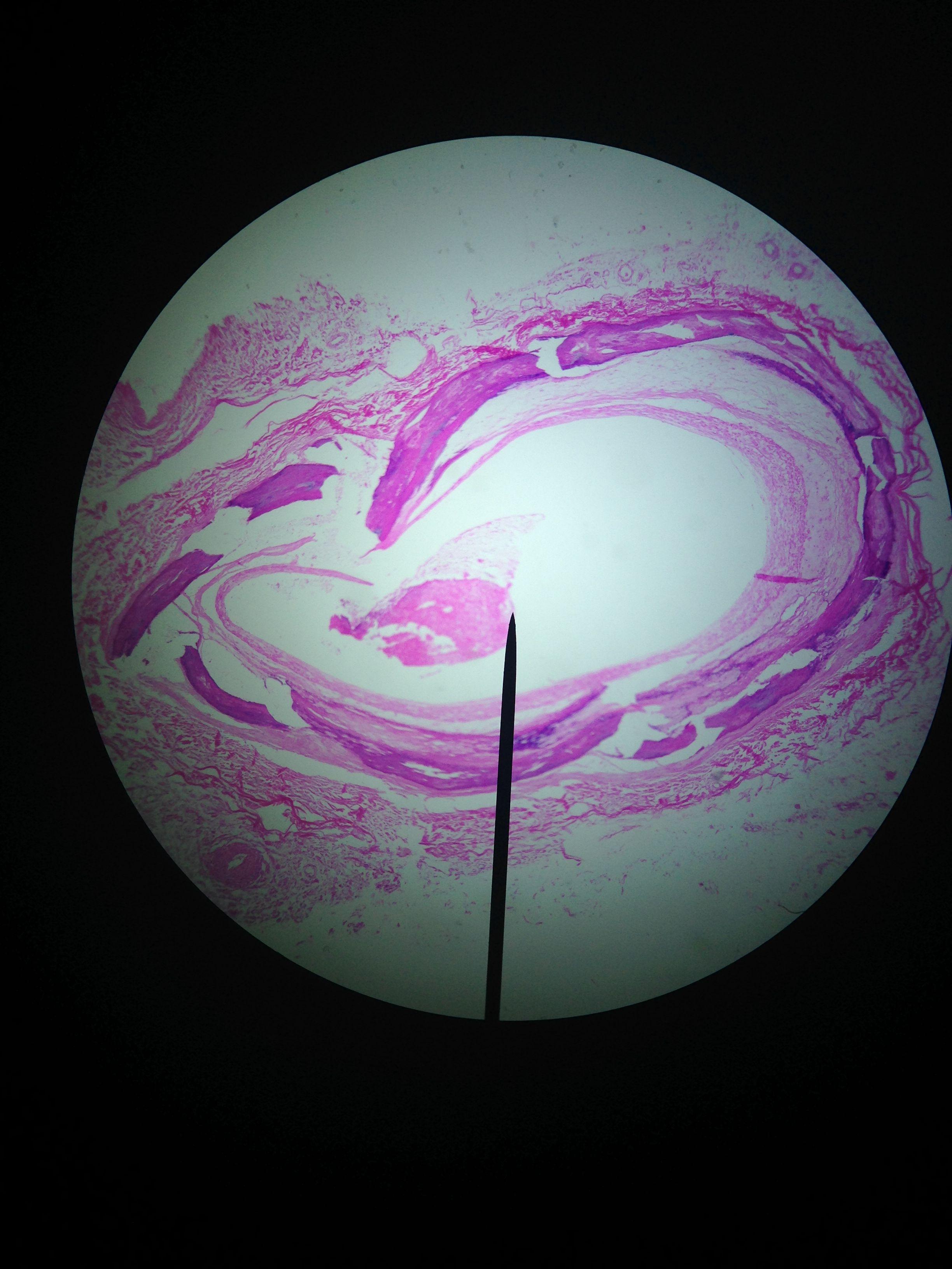 Human Atherosclerosis Coronary C S Pathology Cardiovascular