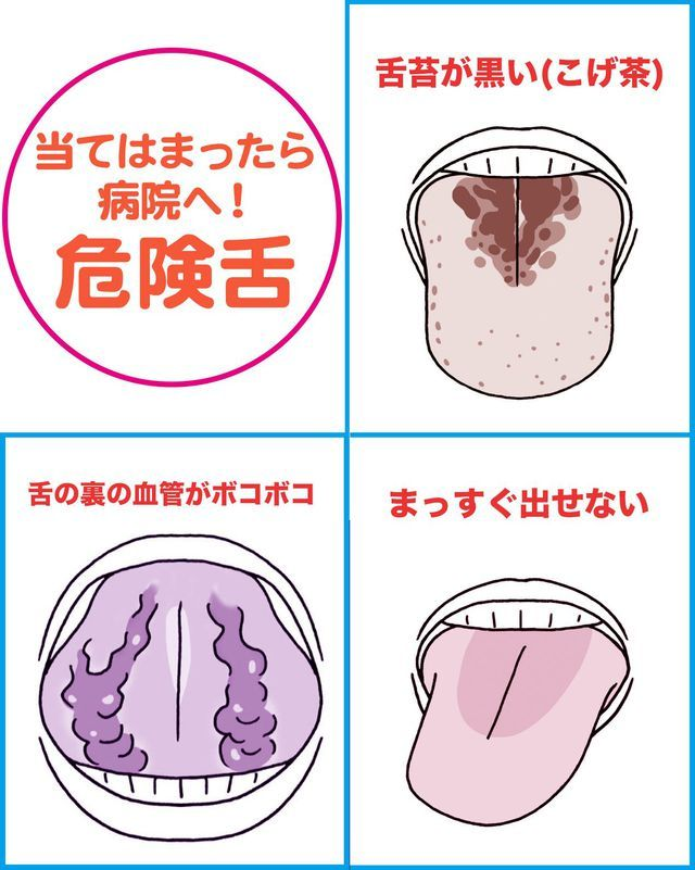 舌には身体のむくみ 乾燥などのサインから 大病の予兆がハッキリ出るという 特に舌の裏は自分の静脈を見られる唯一のところ 舌チェックで今日から病気を遠ざけよう 健康 フェイスケア オーラルケア