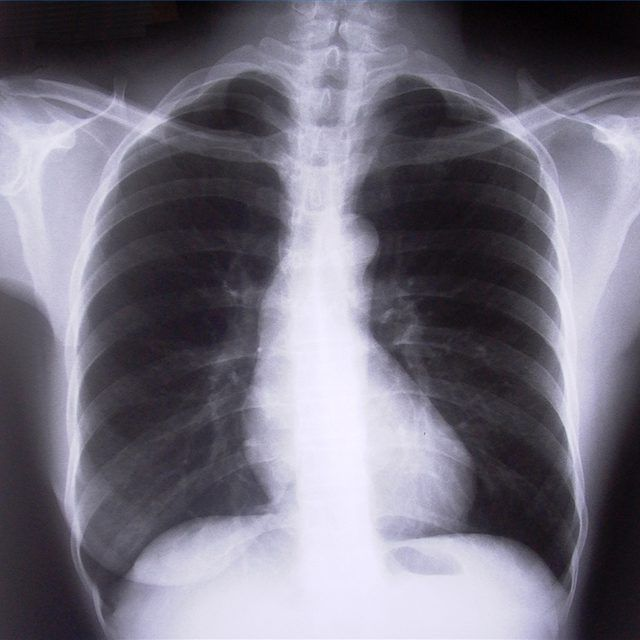 How To Give Your Lungs A Rest Costochondritis Cancer Prevention Chronic Obstructive Pulmonary Disease