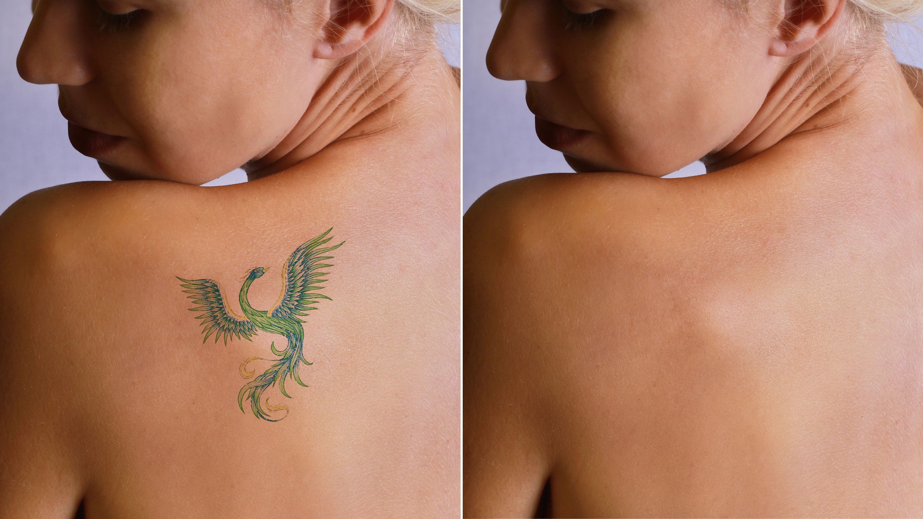 What Happens To Tattoos When You Remove Them Picosure Tattoo Removal Tattoo Removal Tattoo Removal Cost