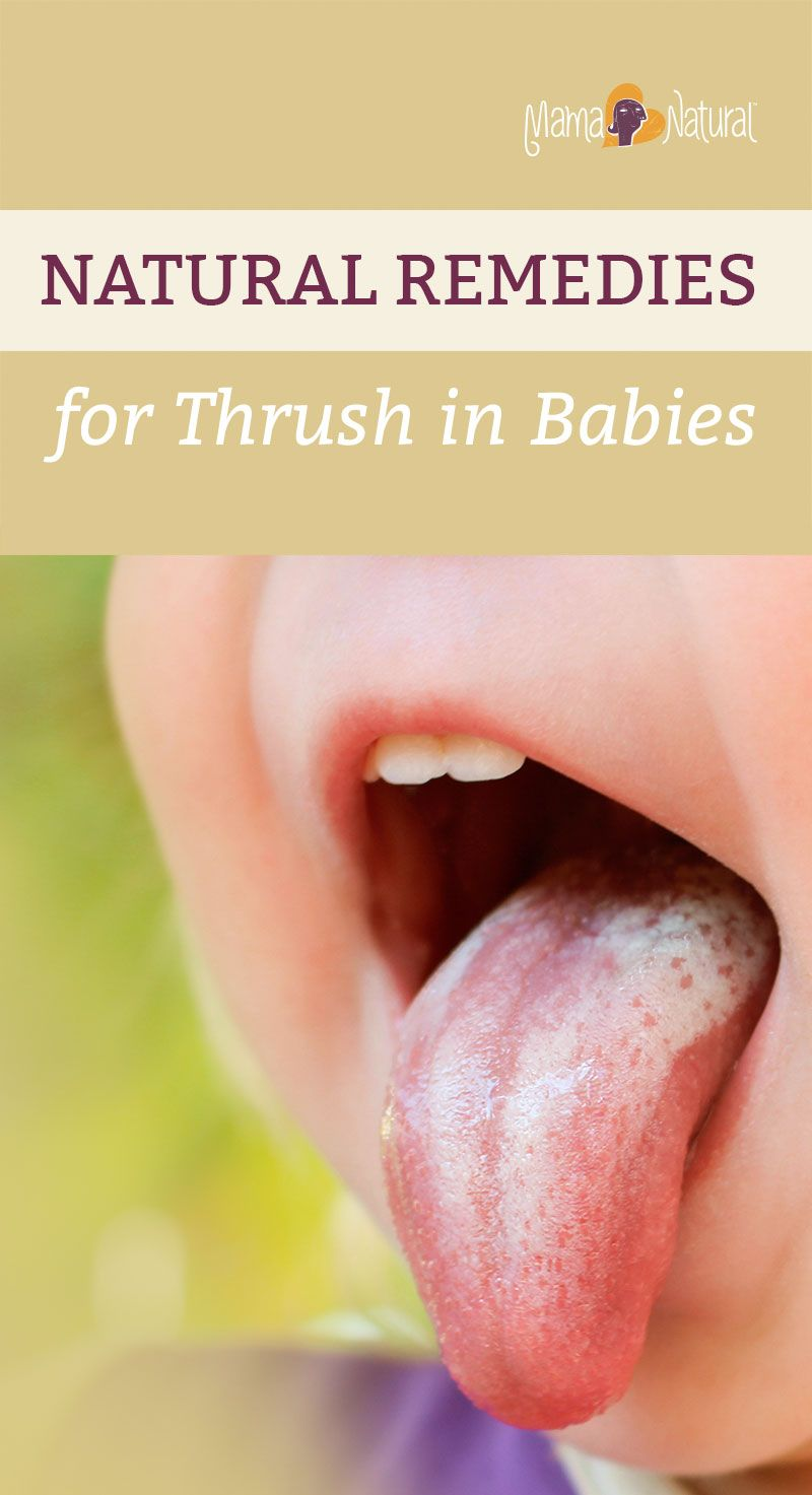 Oral thrush in toddlers apologise