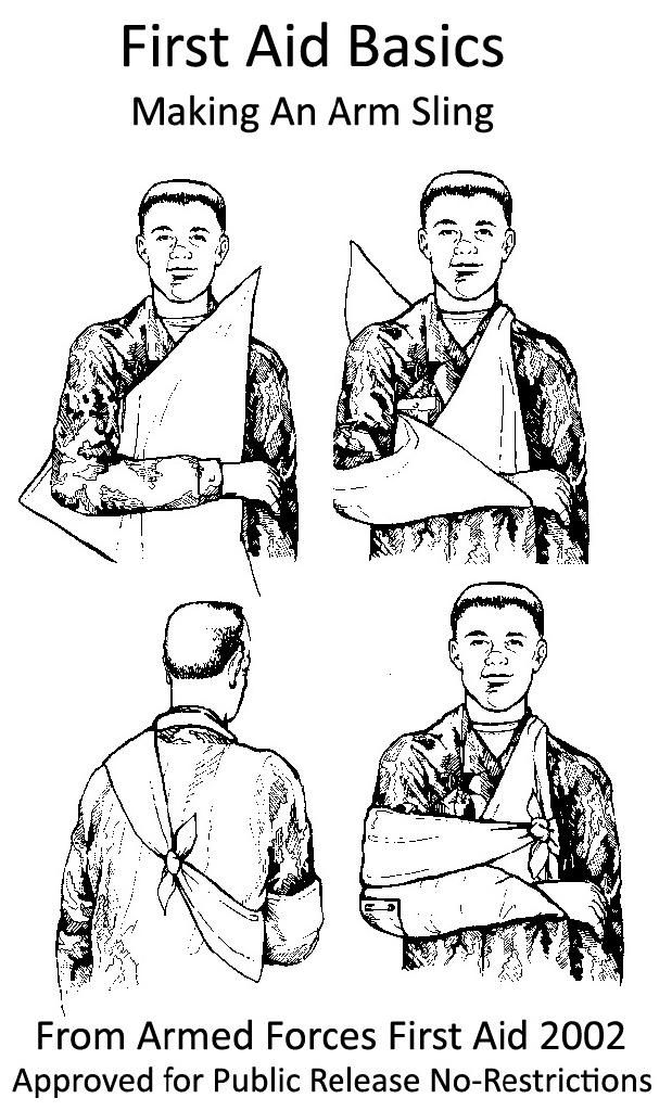 This simple method of how to tie an arm sling first aid is