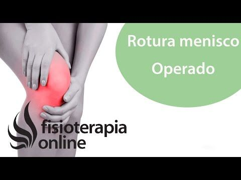 TENDINITIS DE LA PATA DE GANSO. Tratamiento con ejercicios auto ...