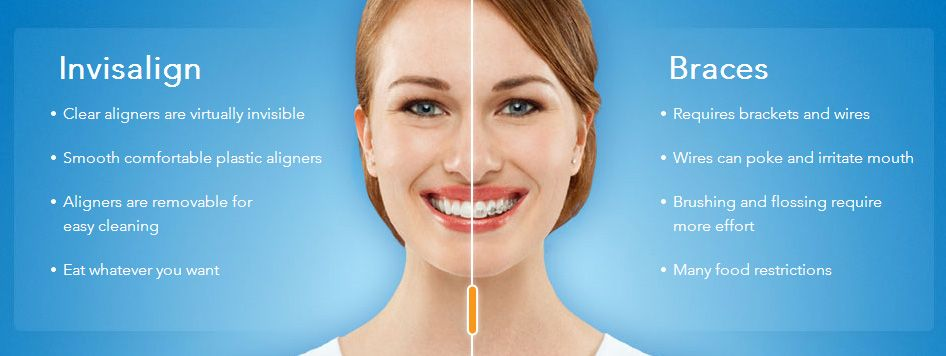 Clear braces are the go-to option for adults, Use ...