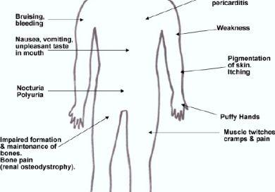 Chronic Renal Disease Kidney Disease With Images Chronic Renal Disease Renal Disease Renal