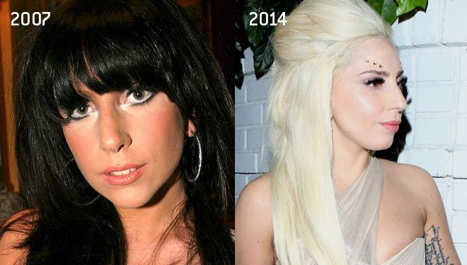 Lady Gaga Nose Job Plastic Surgery Photos Before And After