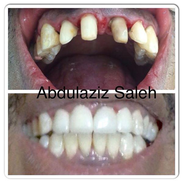 تلبيسات زركون على الأسنان الأمامية دكتور عبدالعزيز مركز رفال لطب الأسنان للحجز والمواعيد 0114509991 0114531999 تحويلة 23
