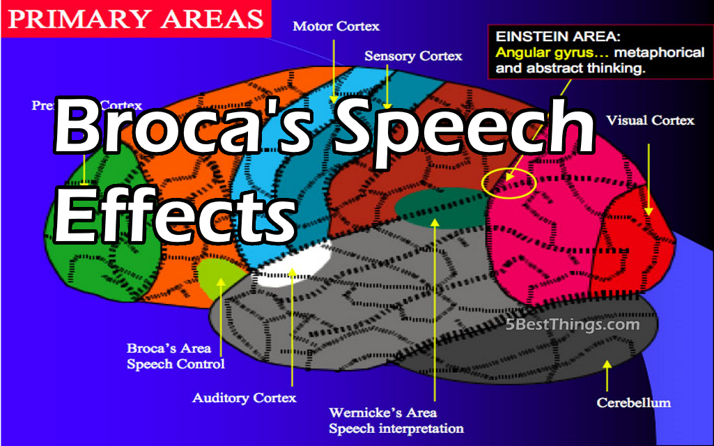 5 Effects of Broca's Speech Area on Health and Wellness