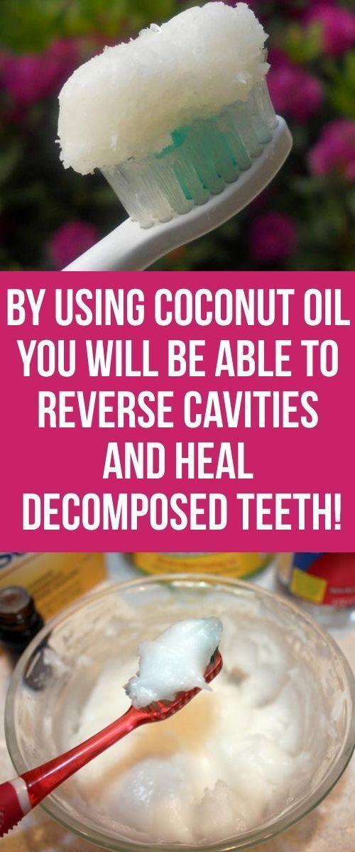 Sie kennen sicherlich die unzähligen gesundheitlichen Vorteile von Kokosnussöl, aber …   – Health