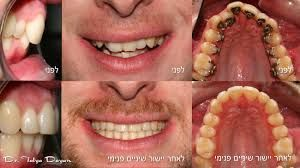Pin By Shirck Orthodontics On Incognito Braces Incognito Braces Braces Before And After After Braces