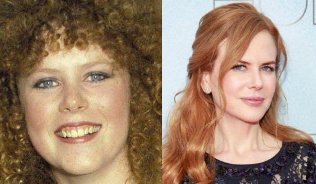 Nicole Kidman Plastic Surgery - MyCheckWeb