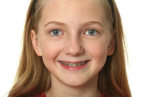 Orthodontist Denver Checkup Picture