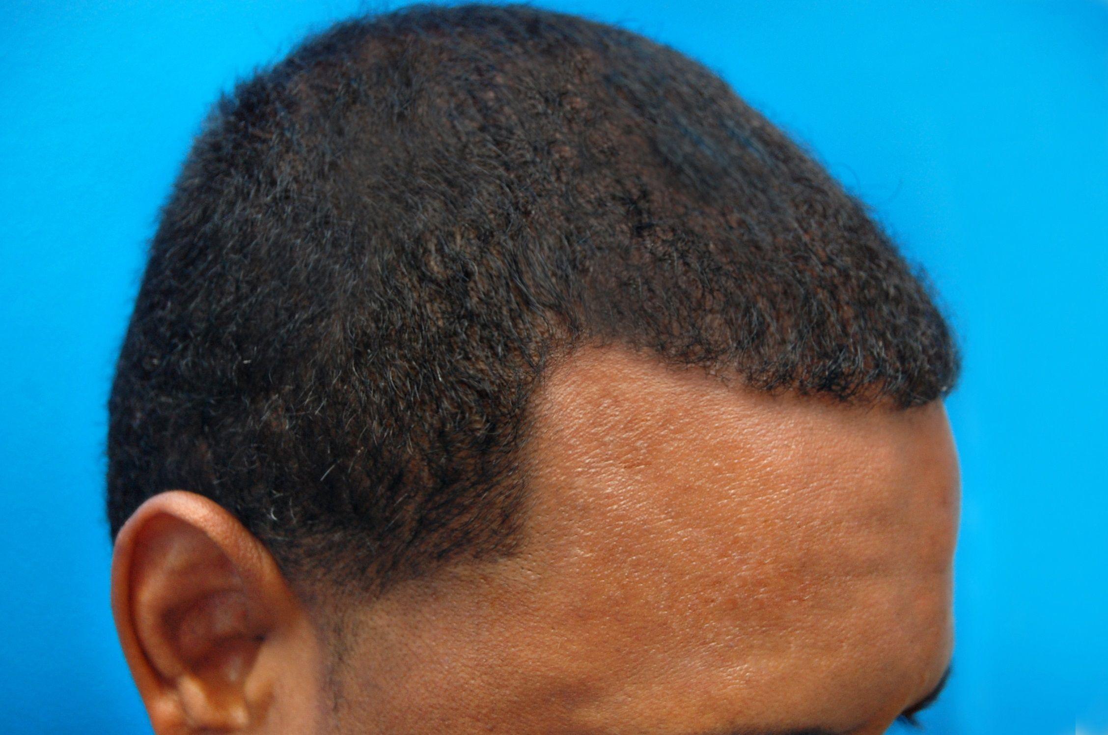 Park Art|My WordPress Blog_Hair Transplant Atlanta African American