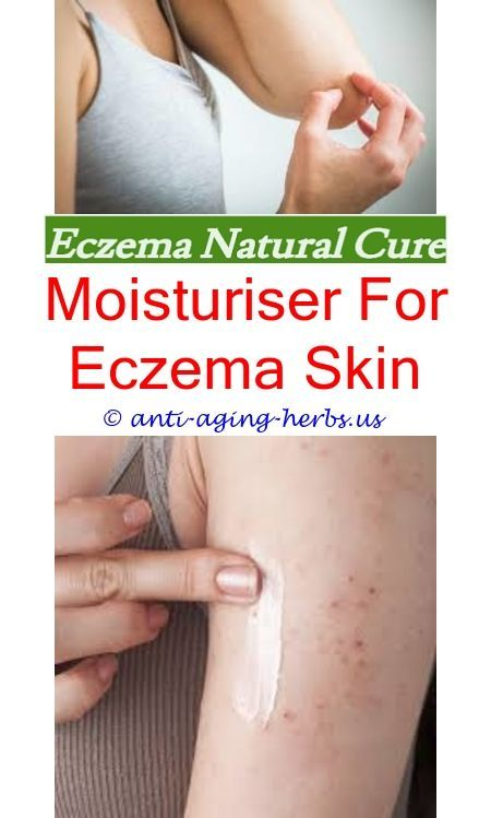 Does eczema cause hair loss How to manage eczema in babies Eczema