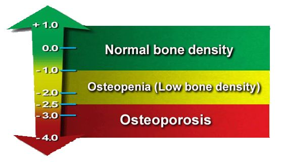 33++ Bone density scan results osteoporosis info