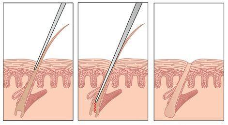 Electrolysis Permanent Hair Removal Procedure The Best Hair Removal Method Electrolysis Hair Removal Hair Removal Hair Removal Permanent