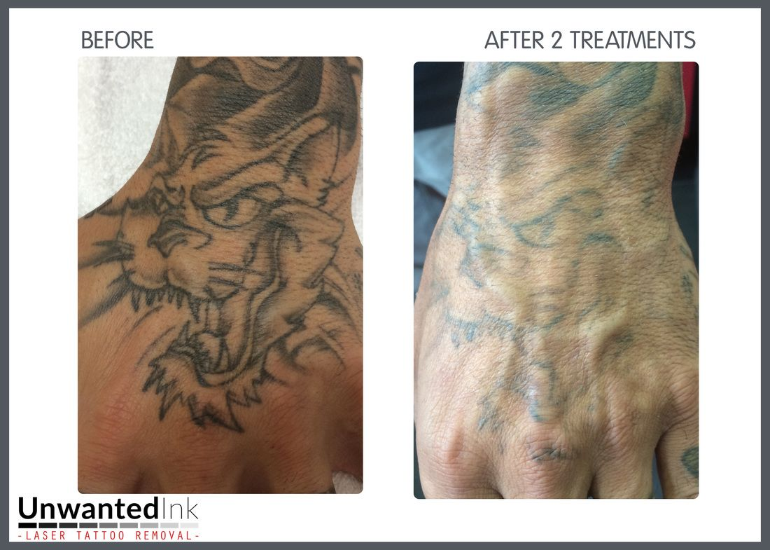Unwanted ink laser tattoo removal sydney hand tattoo for Tattoo turned black after laser